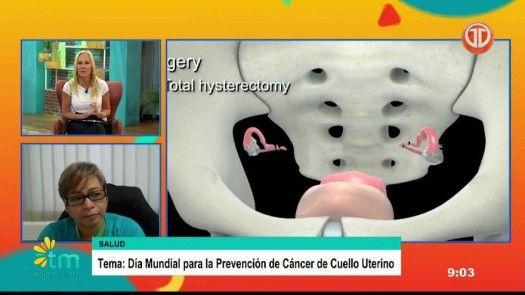 Importancia de la prevención del cáncer de cuello uterino
