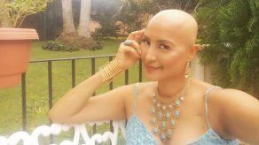 Aquí disfrutando mi calva: Marisela Moreno celebra un año más de vida