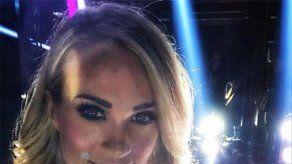 Carrie Underwood presenta su nuevo rostro en premios de la Academia de Música Country