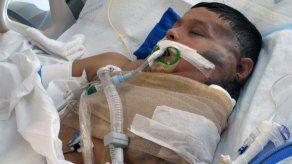 Sale de atención intensiva niño mexicano con tumor