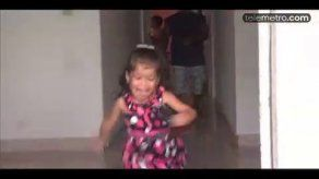 Hannah Yanneth primera siamesa operada en Panamá llegó a 3 años