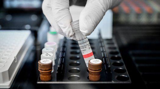Confirmaron seis genes codificadores de proteínas en el genoma del SARS-CoV-2, además de los cinco que están bien establecidos en todos los coronavirus.