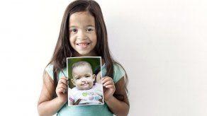 Para Operación Sonrisa erradicar labio hendido es cuestión de vida o muerte