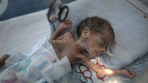 UNICEF: Hambre podría afectar a millones de niños yemeníes
