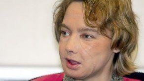 Muere la mujer francesa que recibió el primer trasplante mundial de cara