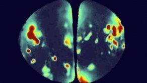 Científicos implantan olores sintéticos en cerebro de ratones