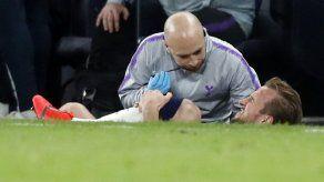 Tottenham: Kane sufrió daño 'significativo' en el tobillo
