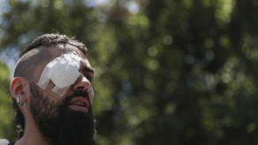 Manifestantes con daño ocular piden justicia en Chile