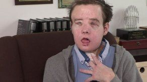 El hombre de las tres caras habla tras un nuevo trasplante