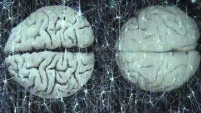 Estimular la memoria retrasa aparición de enfermedades cerebrales
