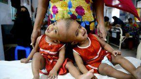 Cirugía para separar gemelos unidos por el cráneo en Bangladesh