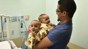 Médicos en NY separan a siamesas dominicanas de 11 meses