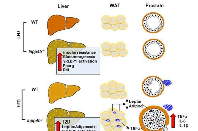 Descubre en un estudio con ratones que la proteína INPP4B protege a los obesos de la enfermedad del hígado graso