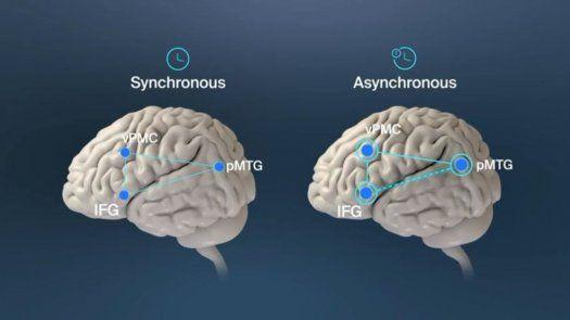 El descubrimiento de la causa de las alucinaciones menores podría ser un buen marcador para estudiar el progreso del Parkisnon y realizar un diagnóstico precoz de la enfermedad.