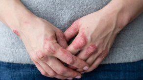 El 91 % de los colombianos ha sufrido enfermedades de piel