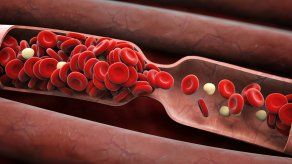 Además del sedentarismo y la obesidad, el tabaquismo es una de las principales causas de generación de trombos o coágulos.