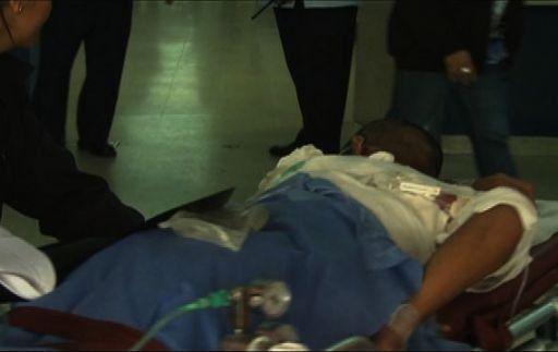Gallardo: Disminuyen casos de quemaduras en el Hospital del Niño