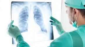 Inmunoterapia aumenta supervivencia en el tipo más común de cáncer de pulmón