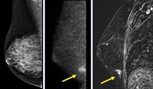 Desarrollan nueva cámara para exámenes de senos